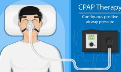 cpap therapy animation